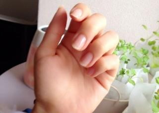【親指・手首対応】腱鞘炎に悩まされる美容師さん向けサポーター・予防薬【通販】